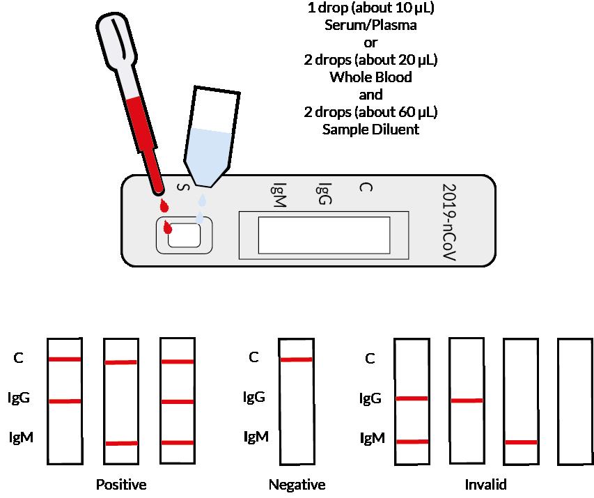 testprocedure covid antibody