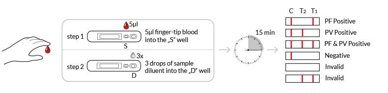 testprocedure malaria