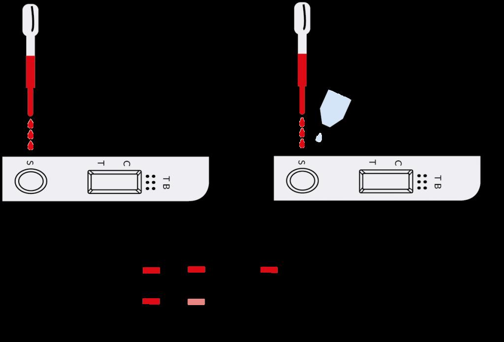 testprocedure tuberculosis